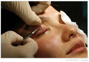 eyelash-restoration-0562